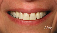 imageElkhartDentistry_SixMonthSmiles_After
